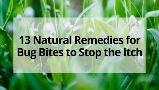 13 Natural Remedies for Bug Bites to Stop the Itch
